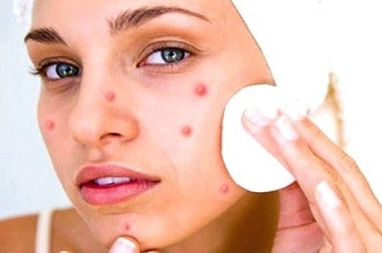 How to remove pimple marks within 1 week
