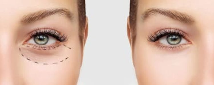 The Future Of Eye And Plastic Surgery