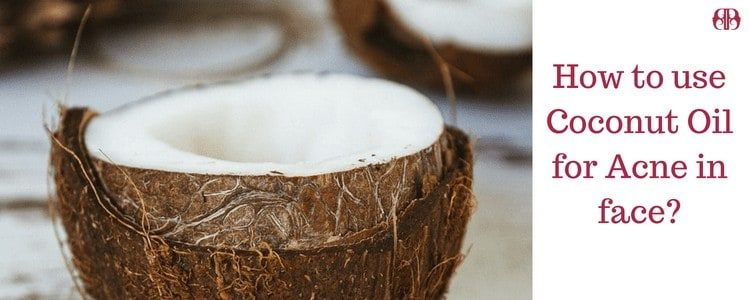 How To Use Coconut Oil For Acne