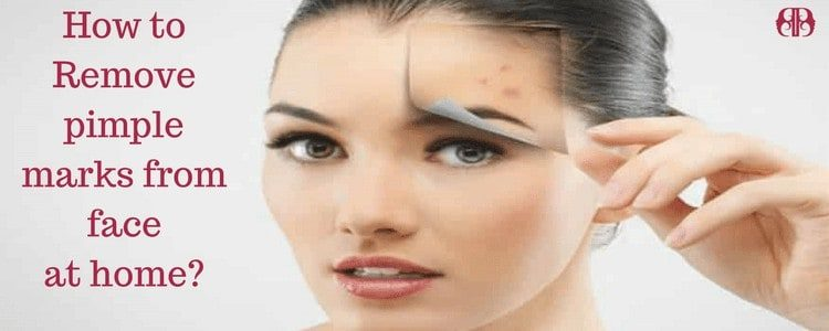 How to remove pimple marks from face fast at home