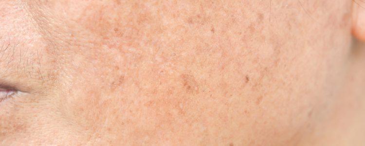 White Spot on Skin